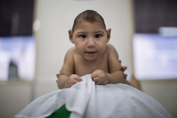 Brazil Zika Babies