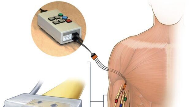 nerve electrodes