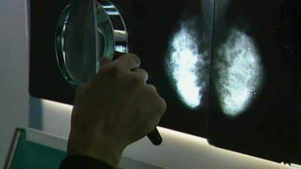 Workplace breast cancer risks