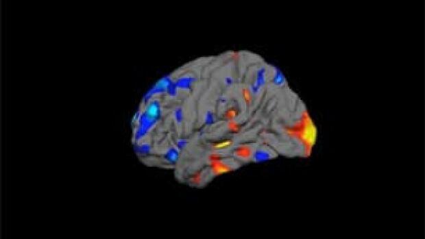 tp-autism-brain100811