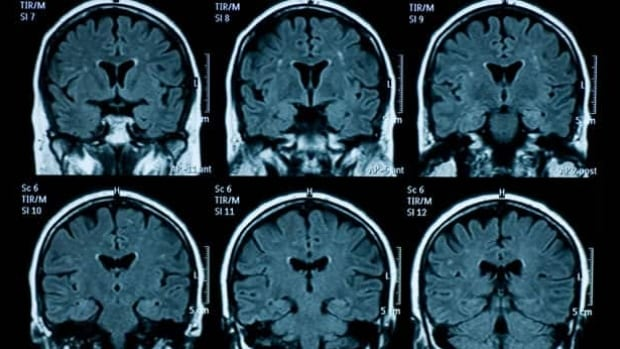 The researchers used MRI scans of more than 1,400 brains, focusing on anatomy rather than how brains work, and found that very few brains had entirely 'male' or entirely 'female' traits.