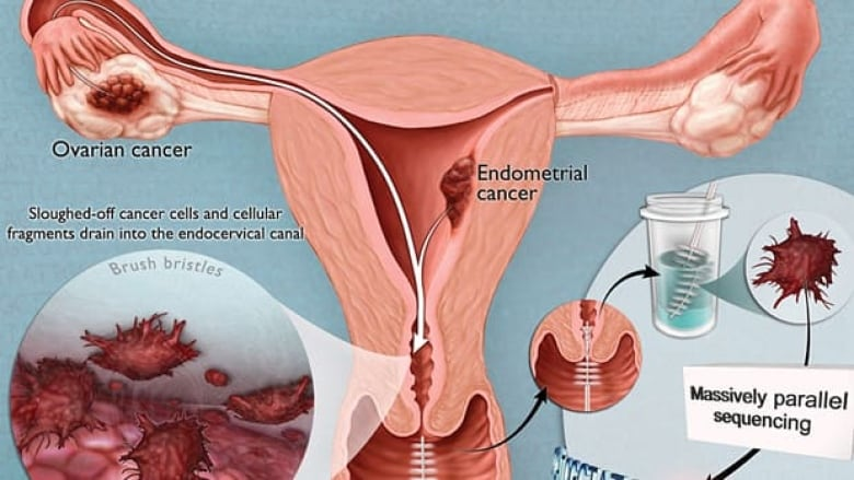 Pap Test For Ovarian Cancer Explored Cbc News