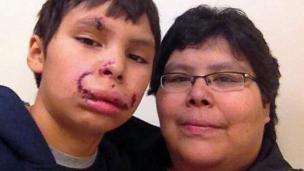 Dante Mekanak required 65 stitches to close the wounds on his face after he was attacked by a dog in Tarbutt Park, on Nov. 17, 2012.