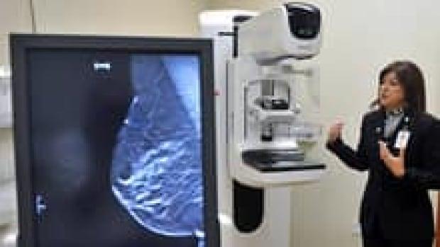 si-mammogram-breast-220-cp-