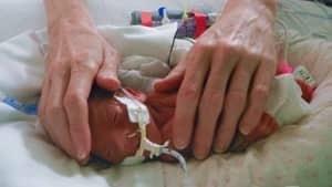 si-bc-120326-australian-baby-premature