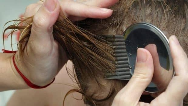 hi-lice-removal-852-8col