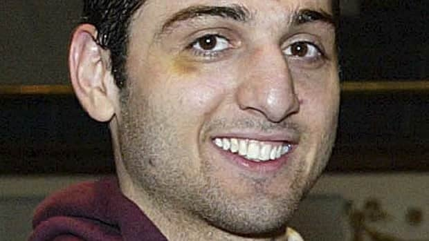 A doctor in Boston says Tamerlan Tsarnaev had so many wounds when he arrived at hospital early Friday that it isn't clear which ones killed him.