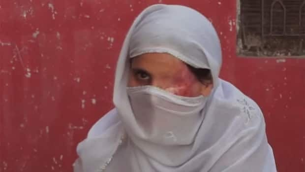 A screen grab from the documentary Saving Face showing one of the Pakistani women featured in the film. The documentary profiles women who have been disfigured as a result of acid being thrown on them, usually by a relative.