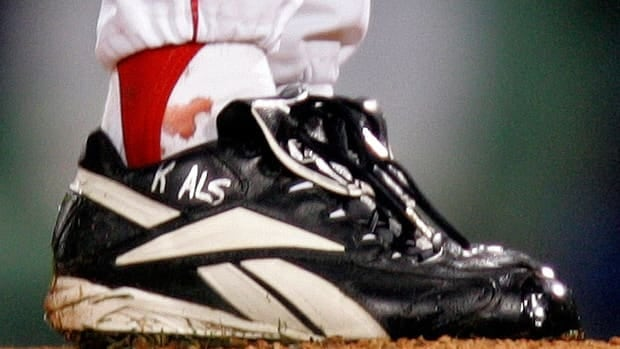 In this Oct. 2004, file photo, blood appears around the right ankle of Boston Red Sox pitcher Curt Schilling during Game 2 of the World Series against the St. Louis Cardinals in Boston.