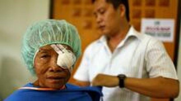 si-cataract-eye-220-cp-rtxp