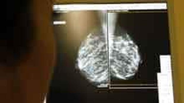 si-mammogram-220-cprtx57zf