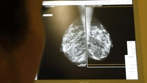 mastectomy-shot-852