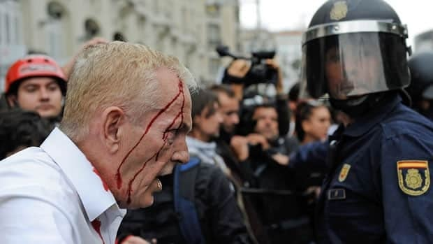 A man with a head wound tries to calm a crowd of protesters Tuesday during a demonstration surrounding the Spanish parliament to protest against spending cuts.