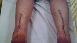 mi-stitches