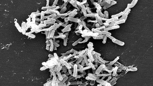 Scanning electron micrograph of Clostridium difficile bacteria from a stool sample. Obtained from the CDC Public Health Image Library.