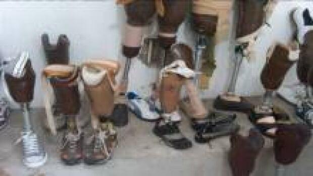 nb-haiti-help-legs_220x124_1
