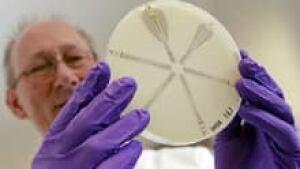 si-klebsiella-ndm-bacteria-