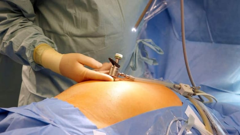 Physician Bonuses Linked To Increase In Laparoscopic Cancer Surgery Cbc News
