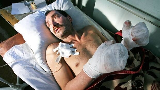 This man with severe frostbite rests in hospital after being exposed to temperatures of -40 C in the Russian city of Barnaul.