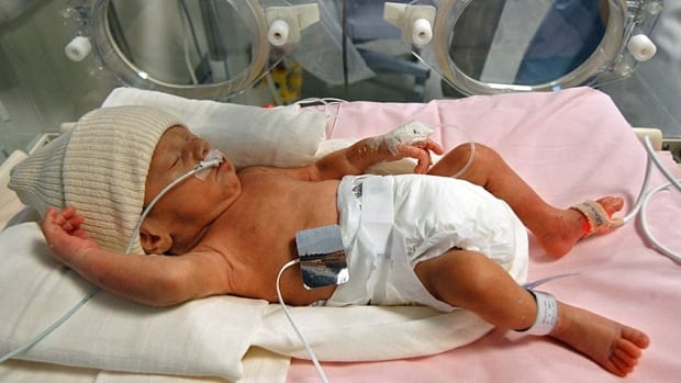 Among children and teens, nearly 40 per cent of total spending is focused on the top one per cent of users, such as babies with low birth weight and prematurity that require neonatal intensive care.