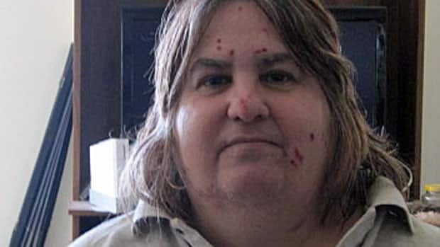 Anne Cataford, who has bedbug bites on her face, arms and stomach, has been dealing with the insects for the last five months.