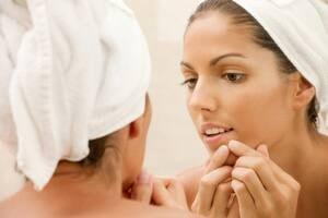 si-acne-300-istock