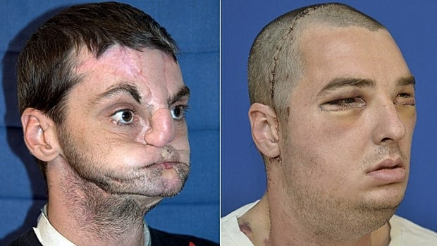 Richard Norris before his face transplant, left, and after the surgery to reconstruct his jaw.