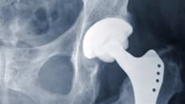 Winnipeg athlete warns others about metal-on-metal hip implants