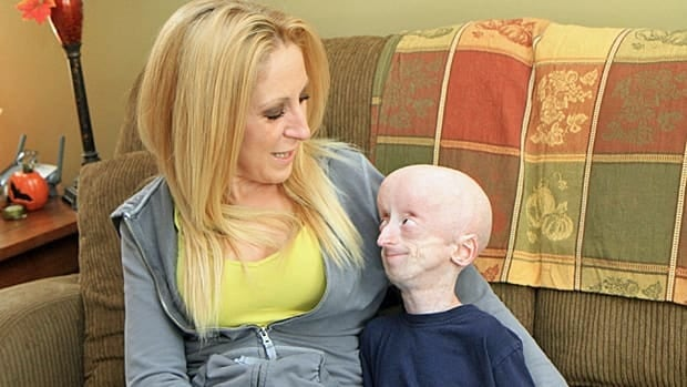 Jamie Madley and her son Devin Scullion are heartened by new advancements in progeria research. (Samantha Craggs/CBC)
