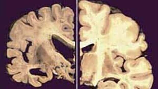 si-alzheimers-brain-03864296