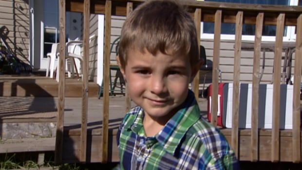 Kayleb Dulaurier was attacked by a bull mastiff in the yard of his Northgate area home Tuesday. His