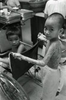 Kim Phuc, age 9