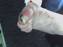 Jean Warden gangrenous toe