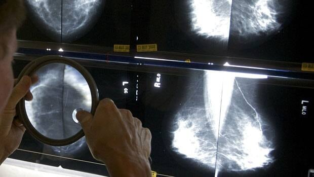 An L.A. radiologist uses a magnifying glass to check mammograms for breast cancer. A new study in one of the world's most prestigious medical journals questions how useful the tests really are.