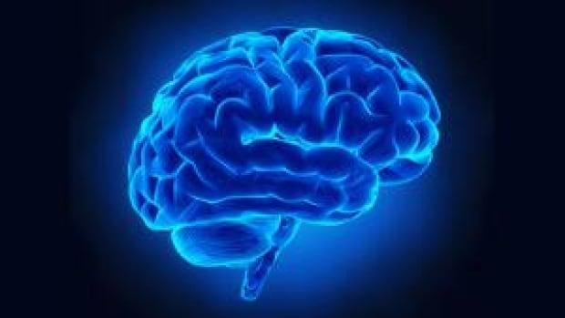 mi-human-brain-300-cp-