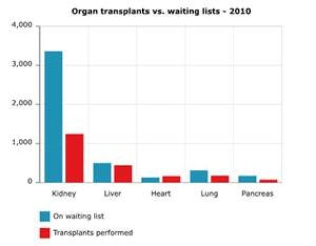 organ-donation-300