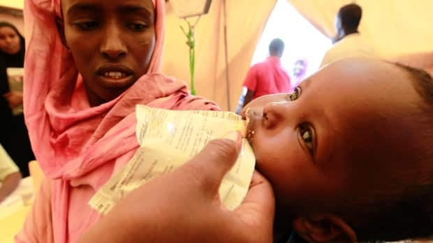 A malnourished Somali child receives food supplements at a mobile medical facility in Galkayo, northwest of Somalia's capital Mogadishu on July 18.