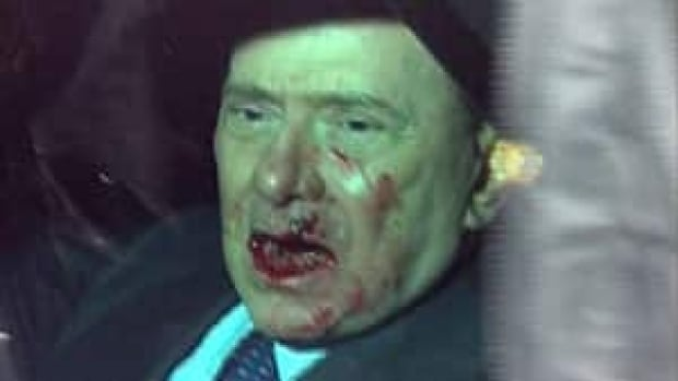 This video image shows Italian Prime Minister Silvio Berlusconi sitting in his vehicle after an attacker hurled a statuette, striking the leader in the face at the end of a rally in Milan in 2009.