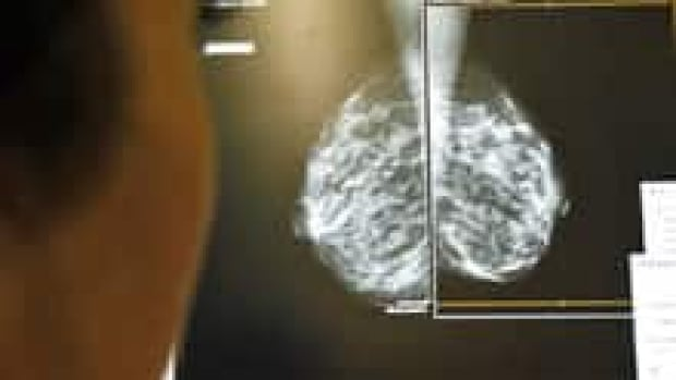 A study involving women in Toronto, the United States and Poland, all with the same gene mutation indicating a high likelihood of developing breast cancer, has found Polish women are less likely to get the disease.