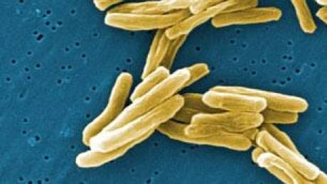 TB outbreak in Nain soars to 50 cases