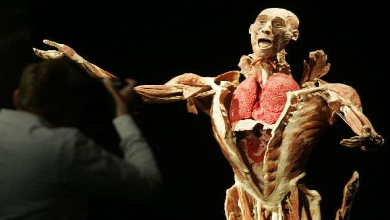 Body Worlds Exhibit Slated For Science Centre Cbc News
