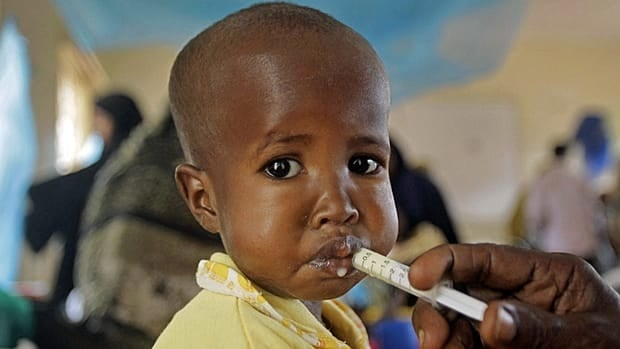 A unidentified child is fed at a local hospital, as children receive treatment for malnutrition at the border town of Dadaab, Kenya, Saturday, July 23, 2011.