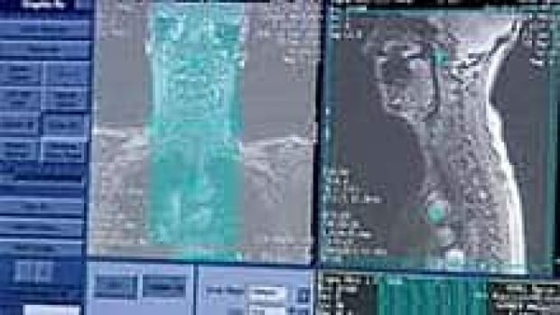 mi-bc-archive-ct-scan-image