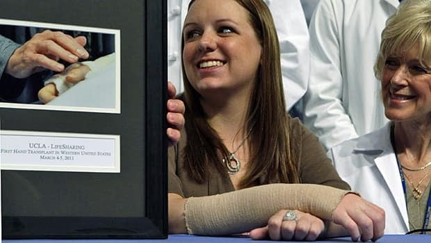 Emily Fennelll, 26, of Yuba City, Calif., smiles next to a photo of her mother touching her donor hand, taken at the conclusion of her hand transplant surgery, at a news conference at UCLA Medical Center in Los Angeles on Tuesday.
