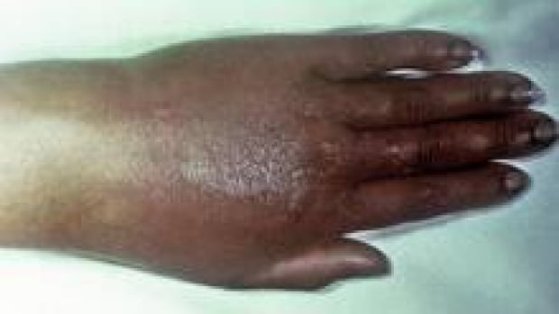 si-gonorrhea-hand-220-cp-cdc