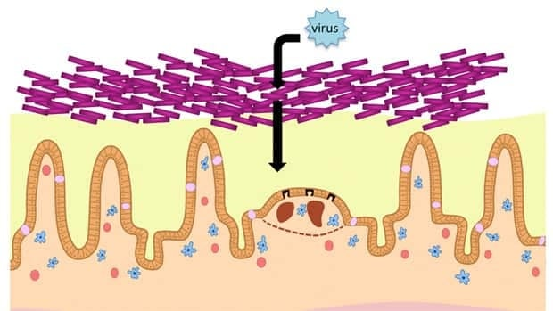 Polio and reovirus appear to need the presence of gut bacteria (the purple rods) to infiltrate the body via the intestines, a new study says.