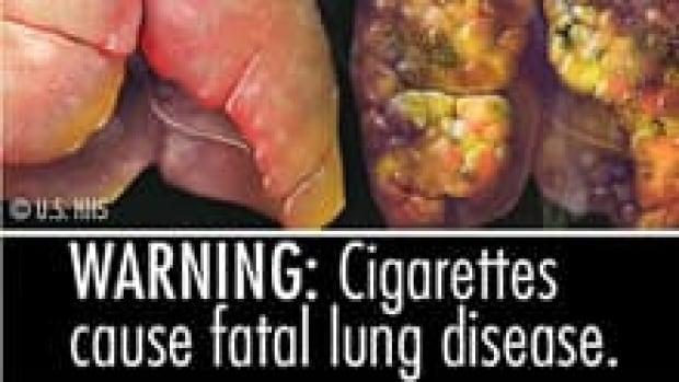 si-lung-disease-smoking-220