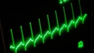 tp-heart-monitor
