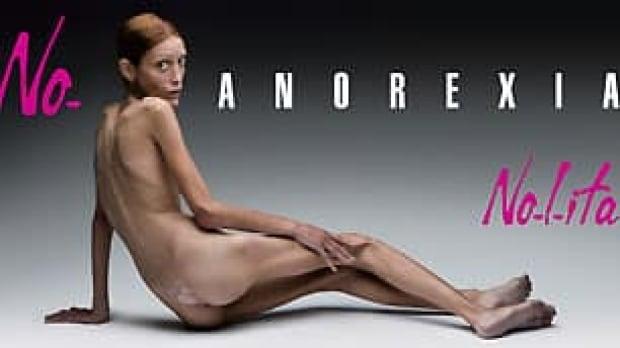 tp-anorexia-cp-rtr1u7ou