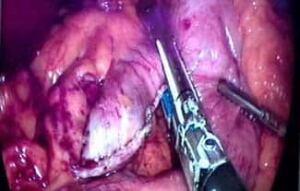 obesity-surgery-325